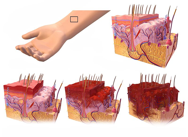 1st, 2nd, and 3rd degree burns affecting the epidermis, dermis, and hypodermis levels of the skin